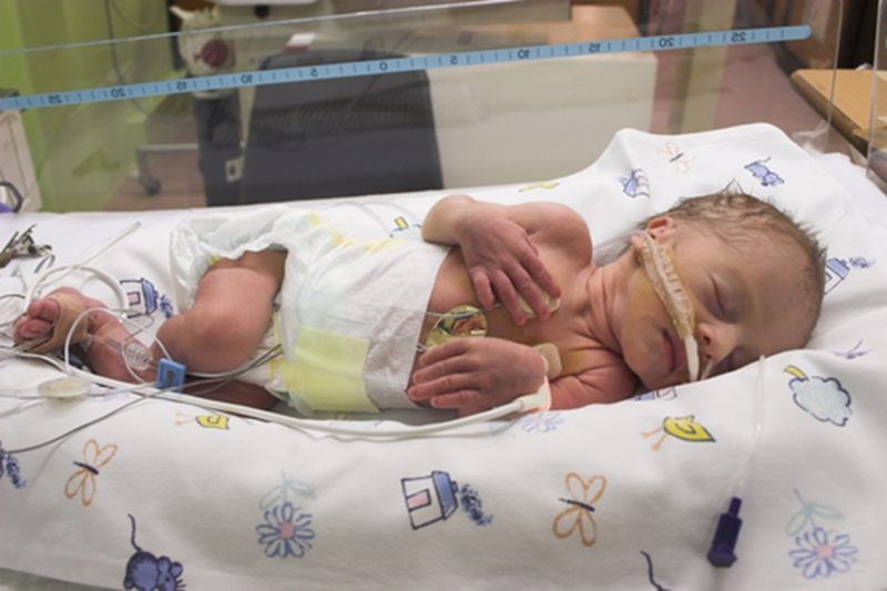 Premature infants can especially benefit from the skin-to-skin contact provided by kangaroo care after birth.